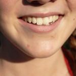 8 Foods That Strengthen Your Teeth