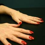 4 Ways to Fight Arthritis Pain