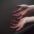 How Hand Therapy Can Relieve Carpal Tunnel Syndrome